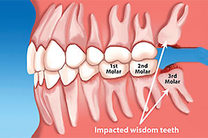 Extractions & Wisdom Teeth Extractions