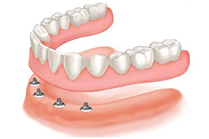 Mini Implant-Supported Dentures